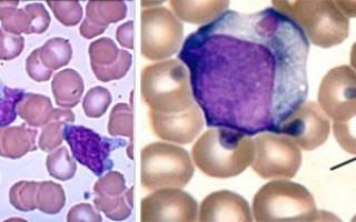 анализ крови на мононуклеары что это такое