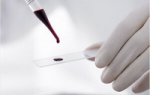 анализ крови развернутый расшифровка у взрослых норма