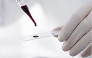 что входит в общий анализ крови из вены расширенный