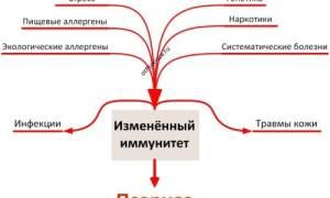 Что такое псориаз и от чего он появляется фото
