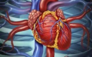 что такое атеросклероз дуги аорты и как он лечится