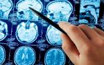 что происходит при инсульте с головным мозгом