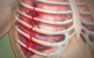 что колит в правой стороне грудной клетки