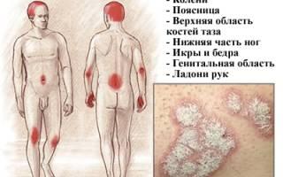 Быстрое лечение псориаза в домашних условиях