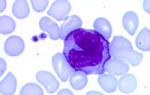 анализ крови на моноциты что это такое