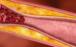 что такое повышенный холестерин в крови и чем он опасен