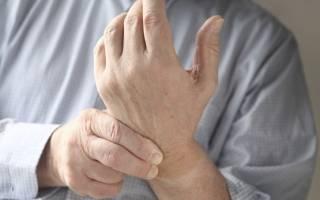 Болят кисти рук при псориазе