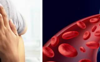 анализ на тромбофилию при планировании беременности что это такое