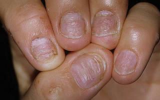 Ванночки для ногтей от псориаза