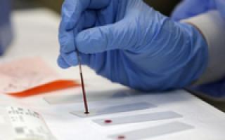что такое гематокрит в крови повышены у взрослого