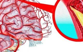 что такое холестериновые бляшки в сосудах головы