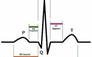 что такое синусовая аритмия сердца у ребенка 7 лет