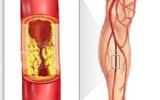 ампутация ноги при атеросклерозе сосудов нижних конечностей