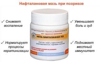 Азернефть нафталан от псориаза отзывы