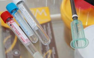 антитела к тпо повышены что это значит