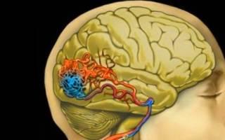 что может быть с сосудами головного мозга