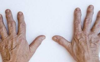 Артропатический псориаз чем его лечить