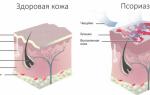 Что такое псориаз на нервной почве