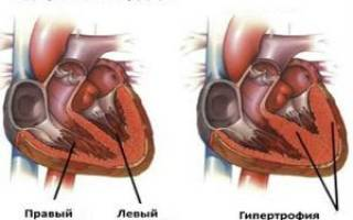 что значит гипертрофия левого желудочка на кардиограмме
