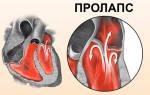 аортальная регургитация 1 степени берут ли в армию