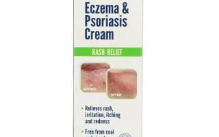 Natralia крем от экземы и псориаза 2 унции 56 г отзывы