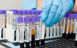 что такое ггт в биохимическом анализе крови