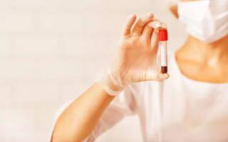 анализ крови на ифа вич что это такое