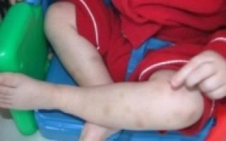 что такое тромбоциты в анализе крови повышены у ребенка