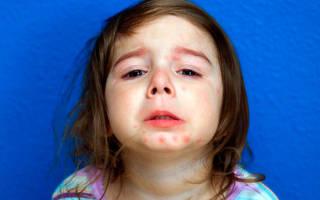 Что такое псориаз и от чего он возникает у детей