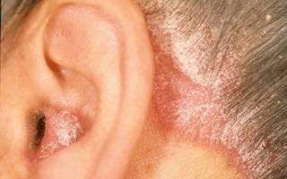 Шелушение ушной раковины при псориазе