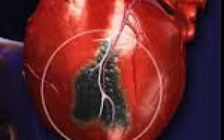 что такое инфаркт и от чего он бывает