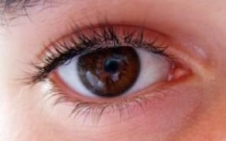 что делать при глазном давлении в домашних условиях