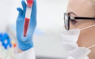 анализ крови lymph что это и норма