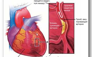 что такое тромб у человека и как он образуется