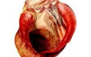 что такое аневризма сердца и чем она опасна
