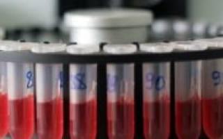 анализ крови на кальцитонин норма у женщин