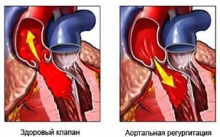 аортальная регургитация 1 степени что это такое