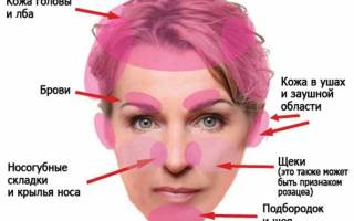 Что принимать при псориазе на лице