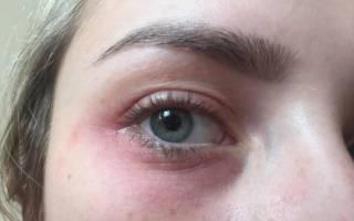 Боль в глазах при псориазе