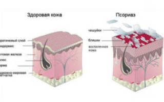 Что такое кожное заболевание псориаз