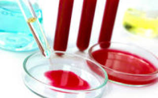 анализ крови на сахар в крови норма