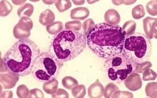 анализ крови нейтрофилы повышены что это значит