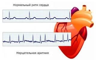 что делать при аритмии сердца при приступе в домашних условиях
