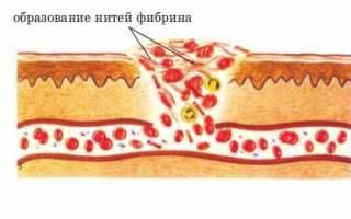 что такое тромб и от чего он образуется