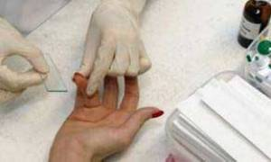 mid в анализе крови что это такое