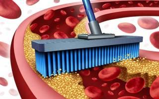 чистка сосудов от холестериновых бляшек народными средствами