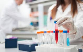 анализ крови протромбиновое время что это такое