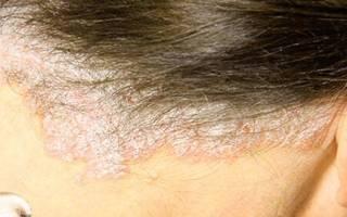 Шампуни при псориазе кожи головы