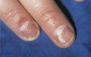 Что такое псориаз ногтей ног