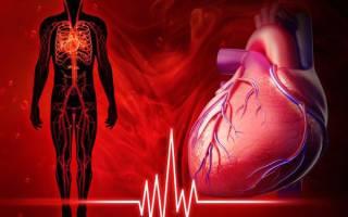 аритмия при низком давлении и низком пульсе
